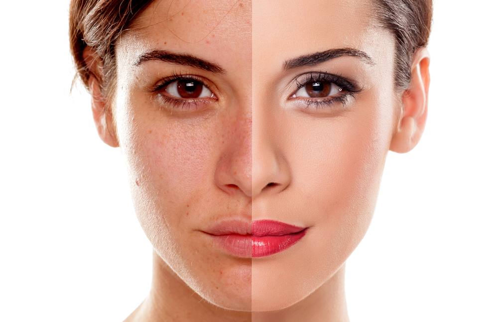 Skincare mistakes that advance aging